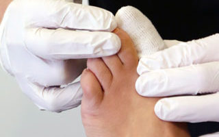 We can help with painful ingrown toenails.